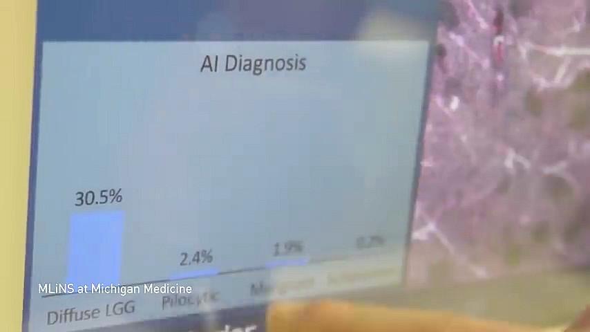 eine Computer AI versucht ein medizinisches Bild auszuwerten/diagnostizieren (Quelle Youtube Video des NVIDIA CEO https://www.youtube.com/watch?v=eAn_oiZwUXA)